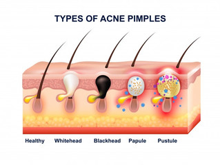 5 Tips on caring for Hormonal Acne