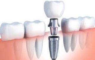 İmplant Diş Yapımı