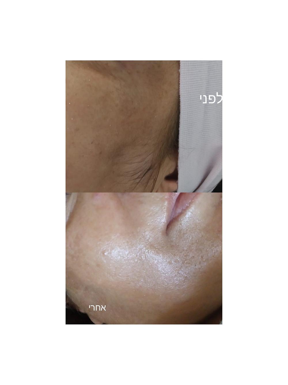טיפול הבהרה ומיצק עור