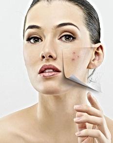 acne-phototherapie1.jpg