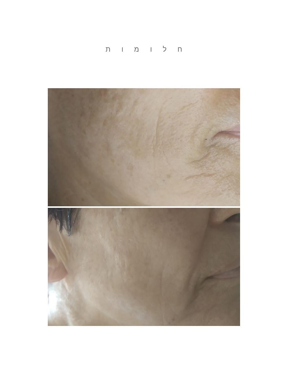 הבהרה ומיצוק העור