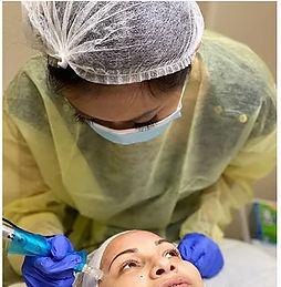 microneedling client beauty procedure