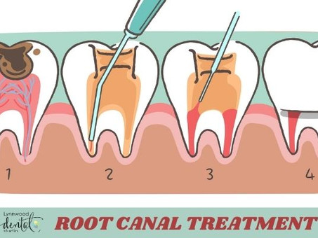 Root canal vs. Extraction: find out the difference!