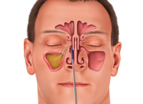 Balloon Sinuplasty as Treatment Option for Chronic Sinusitis