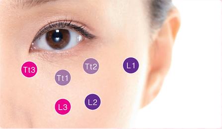 volbella, voluma, juverderm,  黑眼圈、眼袋、眼紋,提眉,提升,淚溝,黑眼圈,喬雅登,長效透明質酸,tear trough, HIFU, Doublo, Dysport,