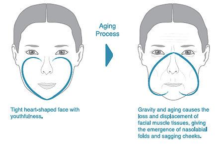 radiesse aging.jpg