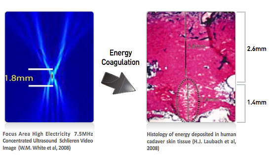 doublo高能聚焦超聲波