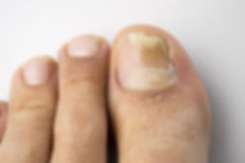 fungal_nail_infection_750.jpg