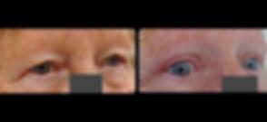 eyelid lift blepharoplasty