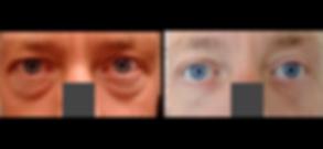 eyelid blepharoplasty