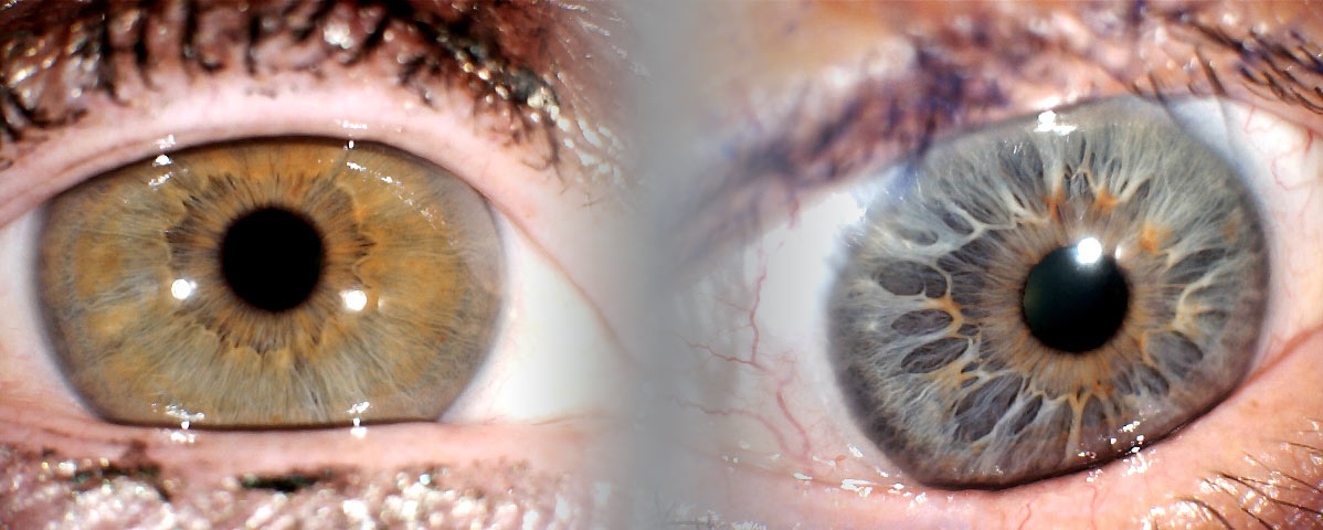 bandeau-iridologie