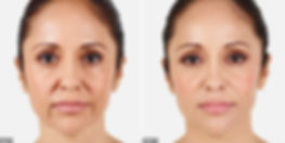 Juvederm-dermal-filler-before-after.jpg