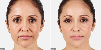 Juvederm-dermal-filler-before-after.jpg