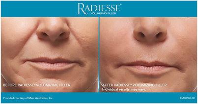 radiesse-front-smile-lines-3.jpg