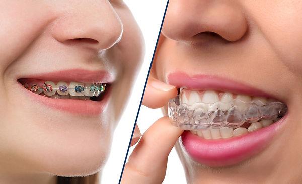 braces-vs-Aligner.jpg