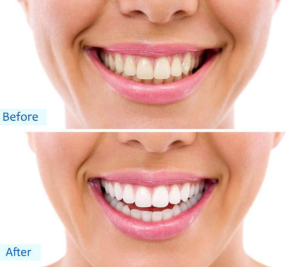 Teeth-Whitening-Process.jpg
