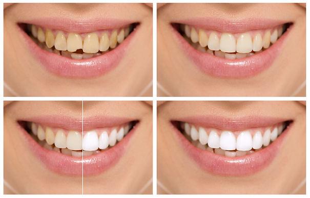Cosmetic Dentistry.jpg