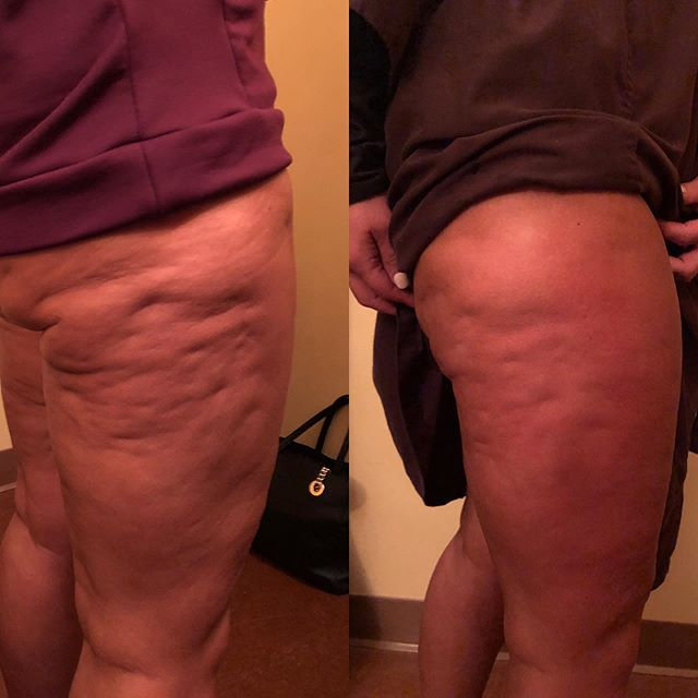 Cellulite Package 7