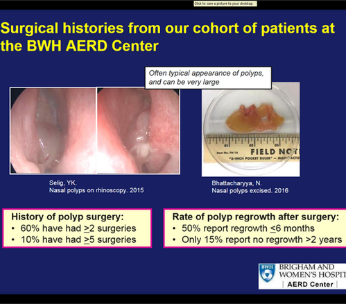 nasal polyp recurrence rate AERD