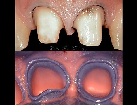 Alessio Gini prosthodontics
