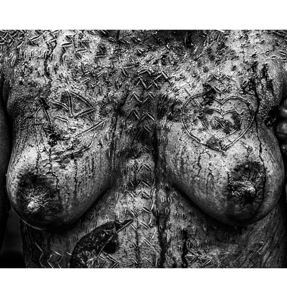 Wylda's Breast