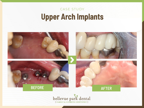 Upper arch implants