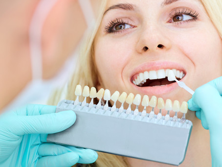 Keep Your Esthetic Restorations Gorgeous & Strong, With Irving, Texas Cosmetic & Restorative Dentist