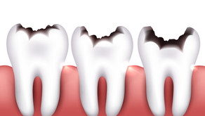 What Are The Worst Foods For Your Teeth? Mckinney, Texas Family & General Dentist Breaks Them Down