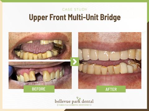 Upper front Multi-unit bridge