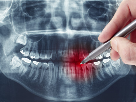 Root Canal Therapy, Step-By-Step; Fort Worth,TX General & Restorative Dentist Explains the Procedure