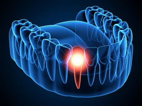 Root Canal Therapy, Step-By-Step;  Irving, TX General & Restorative Dentist Explains the Procedure
