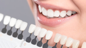 How are Esthetic Crowns and Veneers Different? Your Mckinney, Texas Cosmetic Dentist Explains