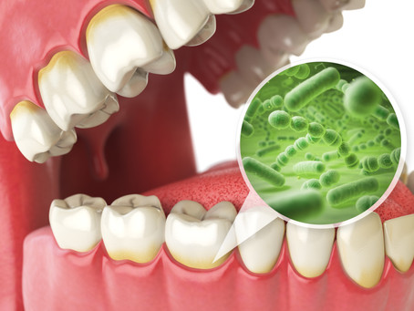 What Are The Worst Foods For Your Teeth? Irving, Texas Family & General Dentist Breaks Them Down