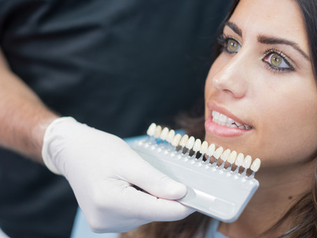 Which One is Right for You: Porcelain Veneers or Crowns? Learn With Fort Worth, TX Cosmetic Dentist