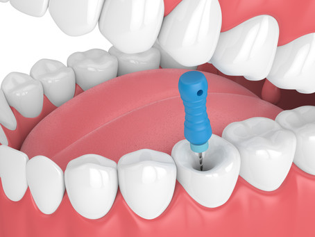 Step By Step: How Root Canal Therapy is Done; Skilled  Irving, Texas Restorative Dentist Explains