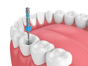 Step By Step: How Root Canal Therapy is Done; Skilled Mckinney, Texas Restorative Dentist Explains