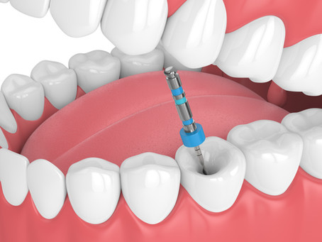 Step By Step: How Root Canal Therapy is Done; Skilled Pflugerville, TX Restorative Dentist Explains