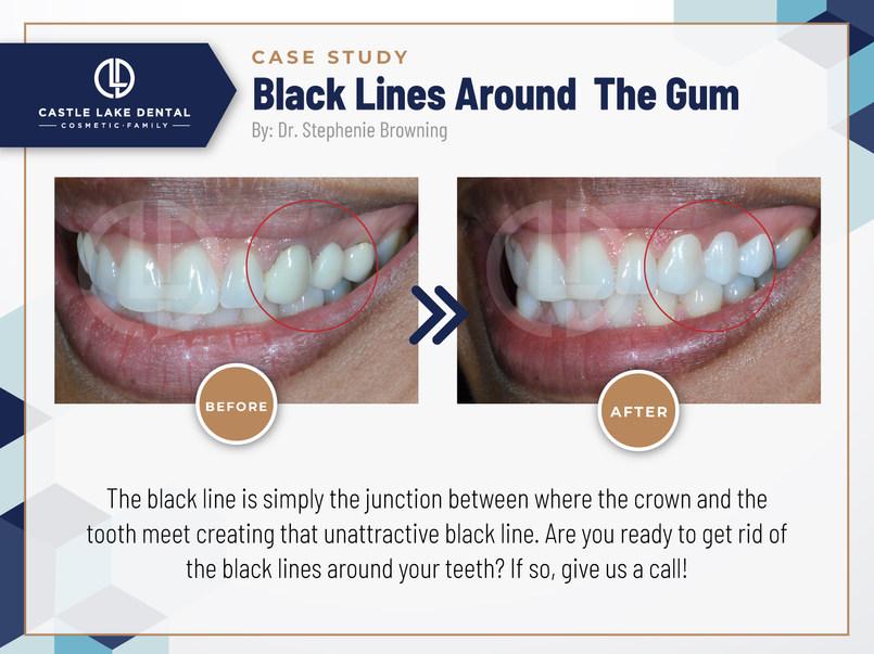 Black Lines Around The Gum