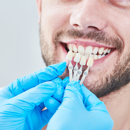 How are Esthetic Crowns and Veneers Different? Your Lewisville, TX Cosmetic Dentist Explains