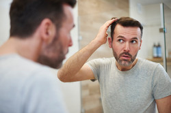 mature-men-is-worried-about-hair-loss-D8