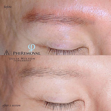 After 1 session of Phiremoval you can al