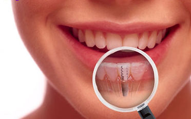 implants-wflrmzfosyis.jpg