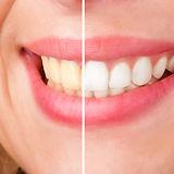 teeth-whitening-plymouth-dentist.jpg