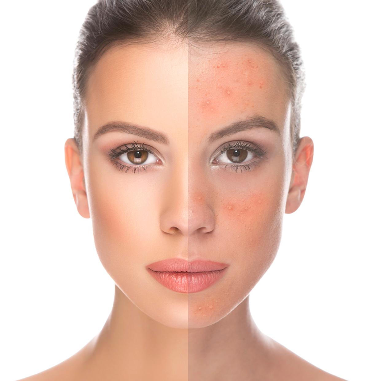 Beta Peel for Acne