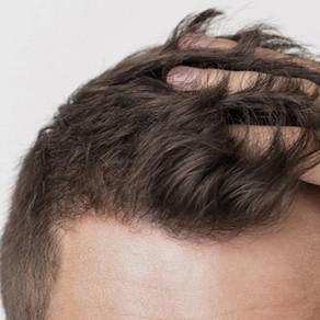 ¿Se te cae mucho el pelo? ¿Sientes que estás perdiendo cantidad? ¡PRP Capilar, tu solución!