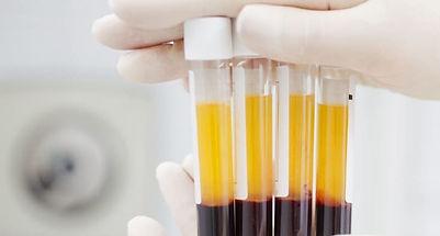 plasma-coronavirus.jpg
