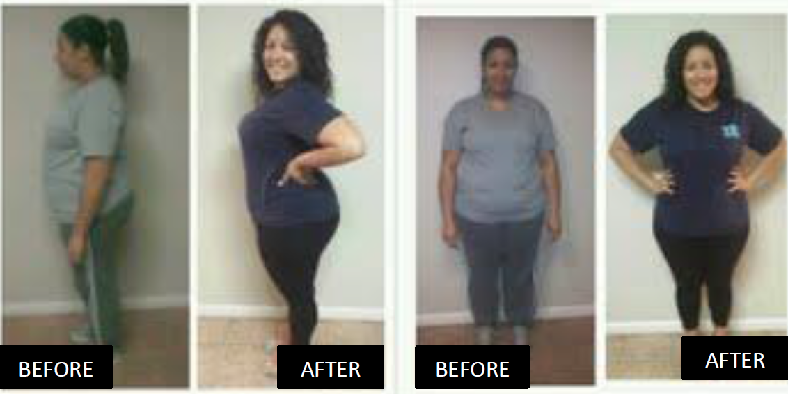 Jillian Before & Afters