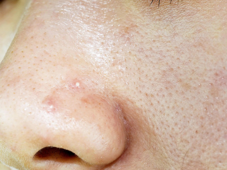 Ingredients To Avoid If You Have Oily Combination Skin