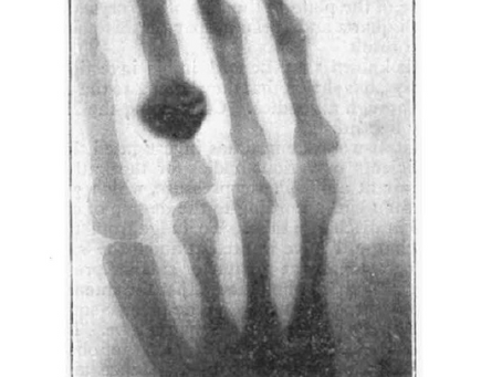 On the discovery and characterization of x-rays (1896 style!)