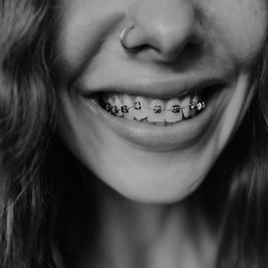 Ortodontik Tedavi